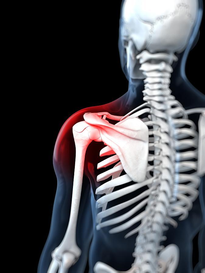 Shoulder Pain, Conceptual Artwork Digital Art