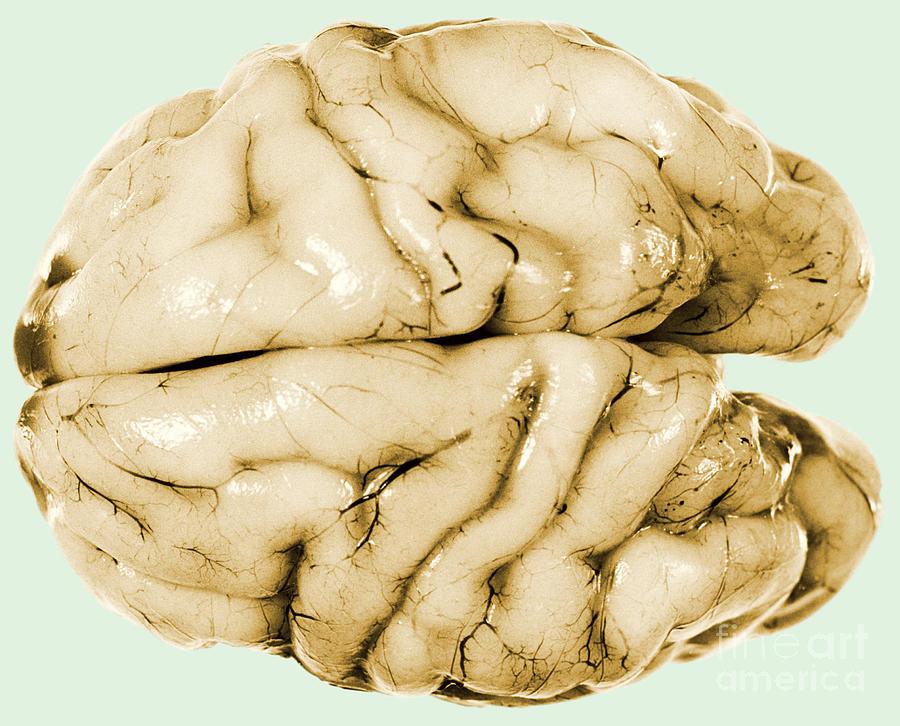 Brain Photograph