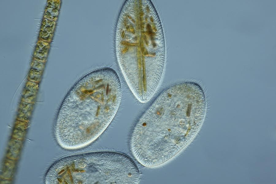Frontonia Protozoa, Light Micrograph Photograph