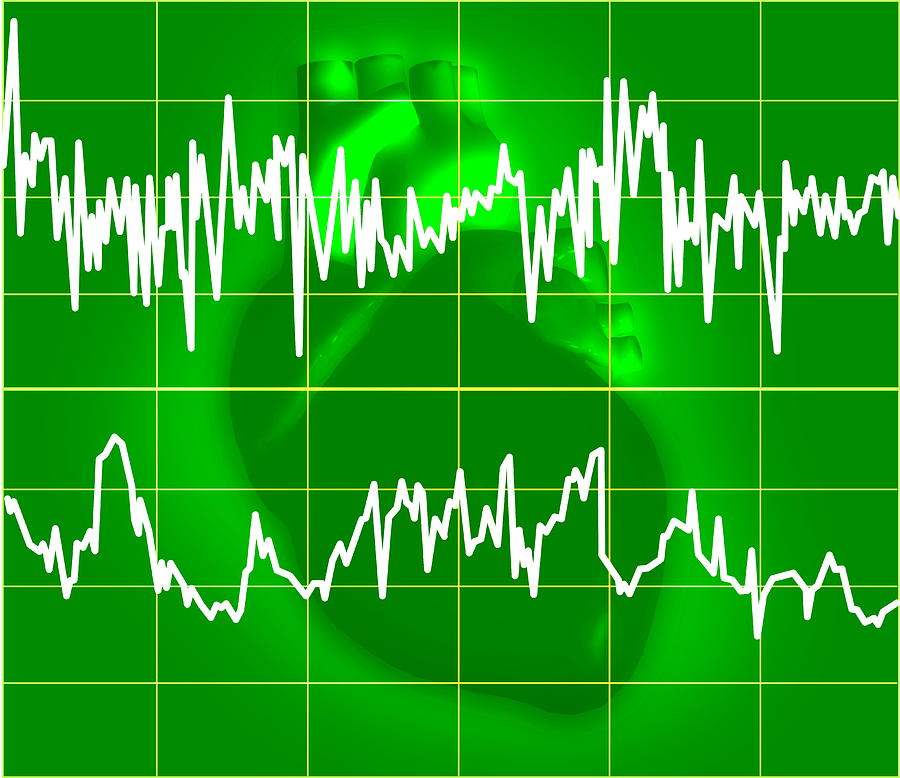 how to detect irregular heartbeat