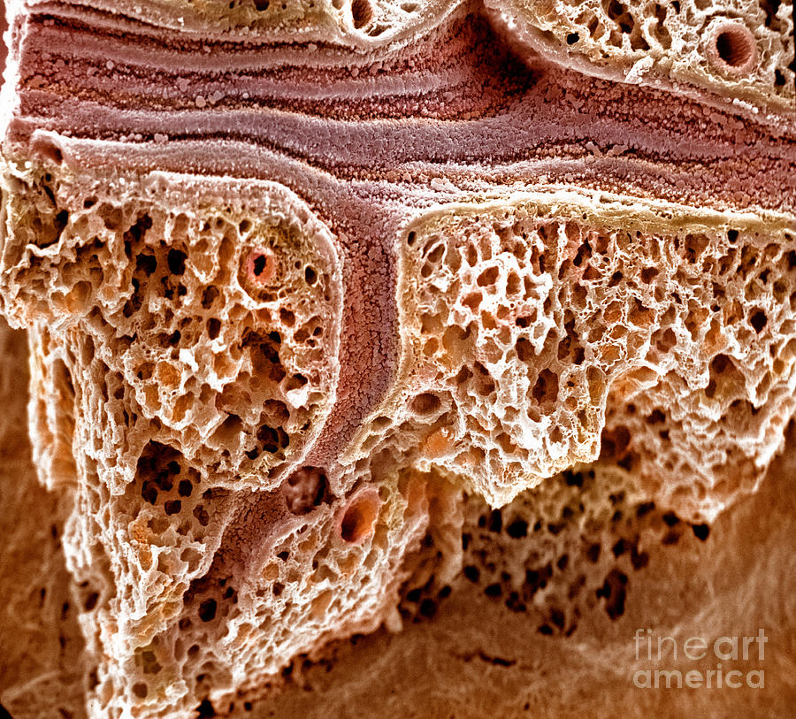 Mouse Lung, Sem Photograph  - Mouse Lung, Sem Fine Art Print