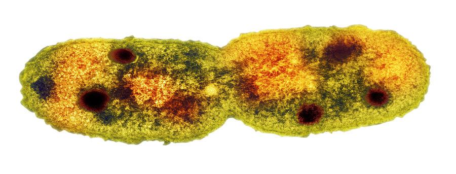 Mycobacterium Dividing, Tem Photograph
