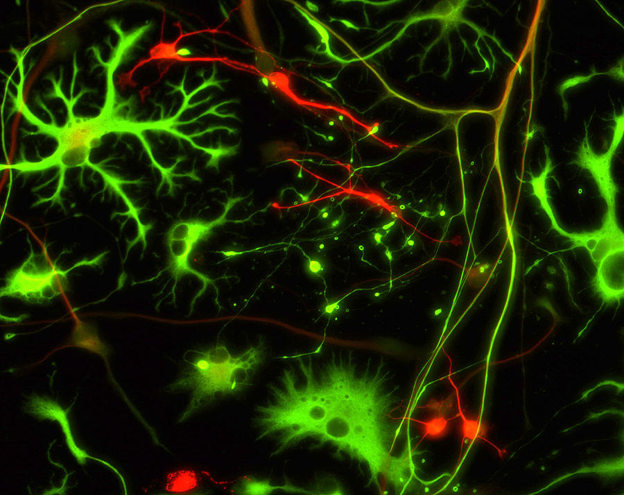 Nerve Cells Photograph  - Nerve Cells Fine Art Print