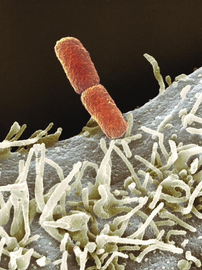 Shigella Bacteria, Sem Photograph