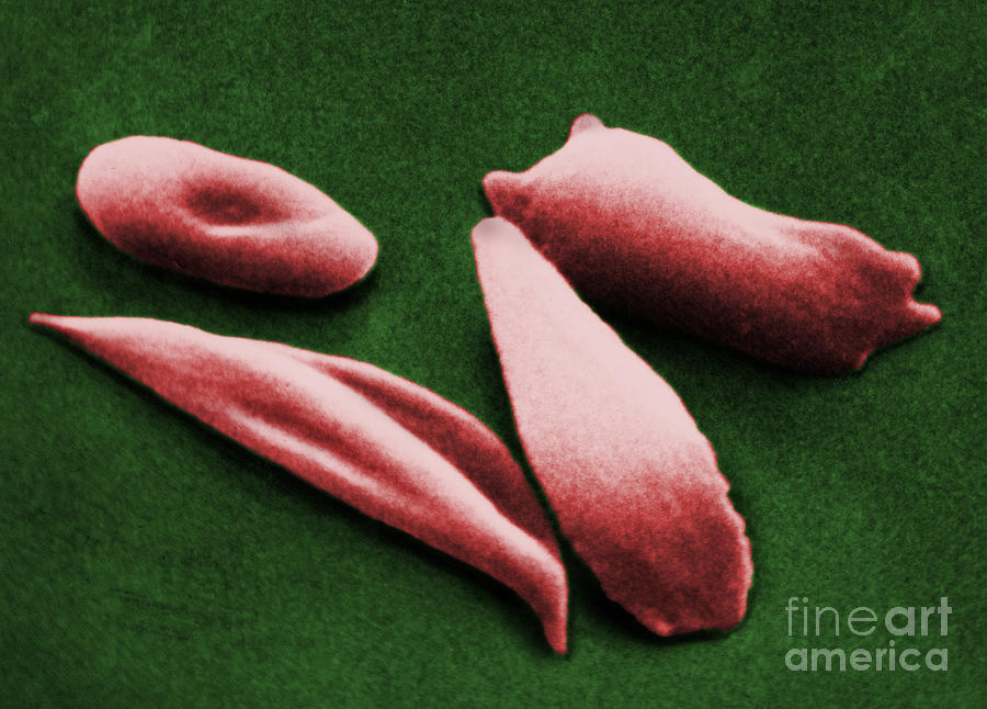 Sickle Red Blood Cells Photograph