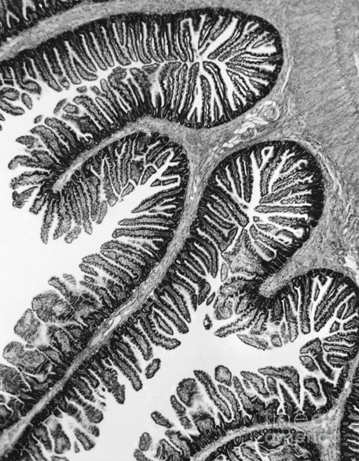 Tem Of Intestines Villi Photograph