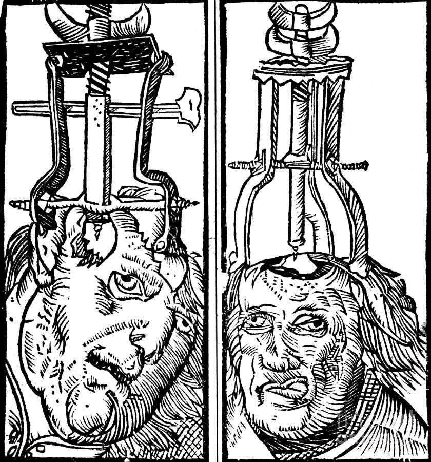 Science Photograph - Trepanning 1525 by Science Source