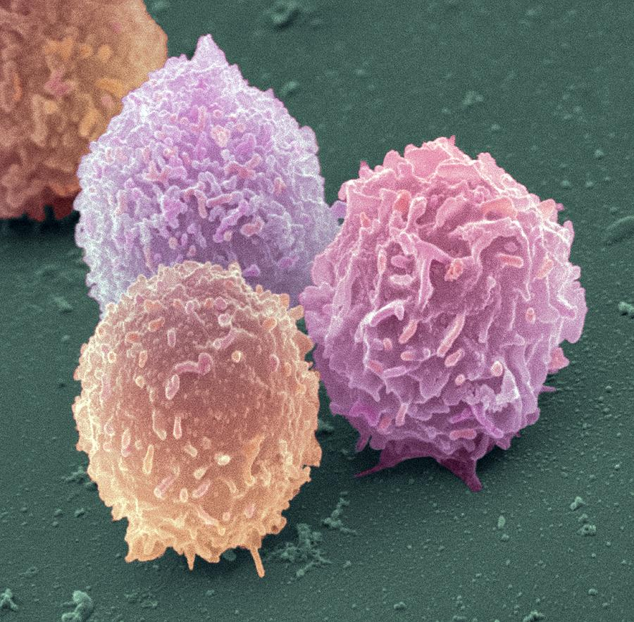 Lymphocytes Photograph - White Blood Cells, Sem by Steve Gschmeissner