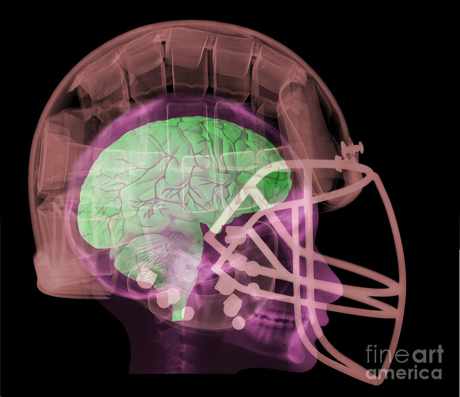 X-ray Of Head In Football Helmet Photograph