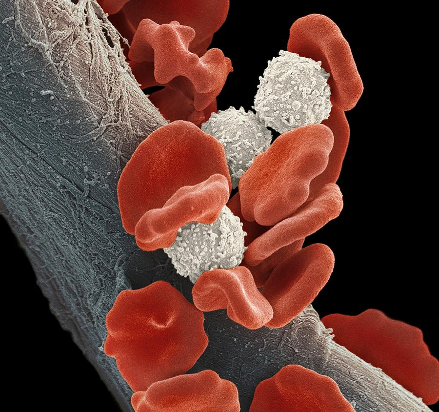 Leukaemia Blood Cells, Sem Photograph  - Leukaemia Blood Cells, Sem Fine Art Print