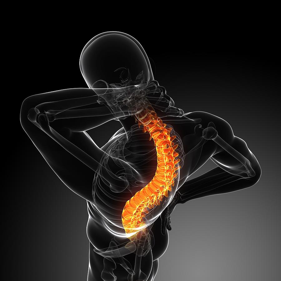 Back Pain, Conceptual Artwork Photograph