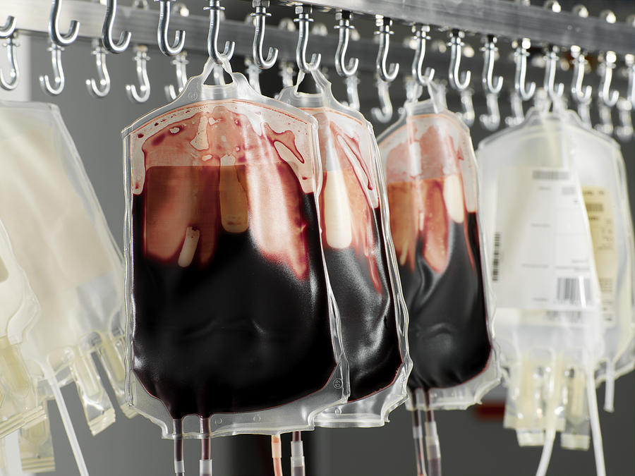 Donor Blood Processing Photograph  - Donor Blood Processing Fine Art Print