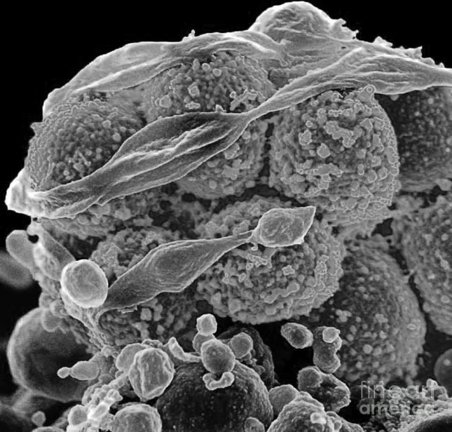 Methicillin-resistant Staphylococcus Photograph
