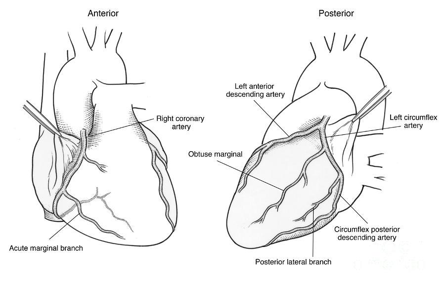 Of Coronary Arteries