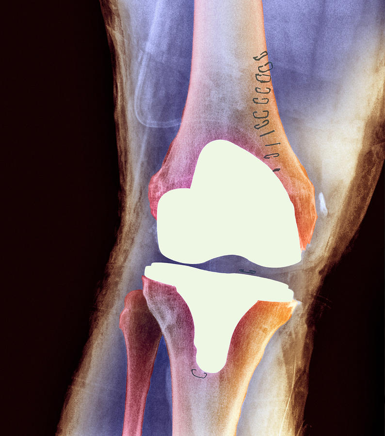 knee prothesis replacements Have you or a loved one had to have corrective surgery because your initial knee replacement implant failed talk to us call 1-800-210-8503.