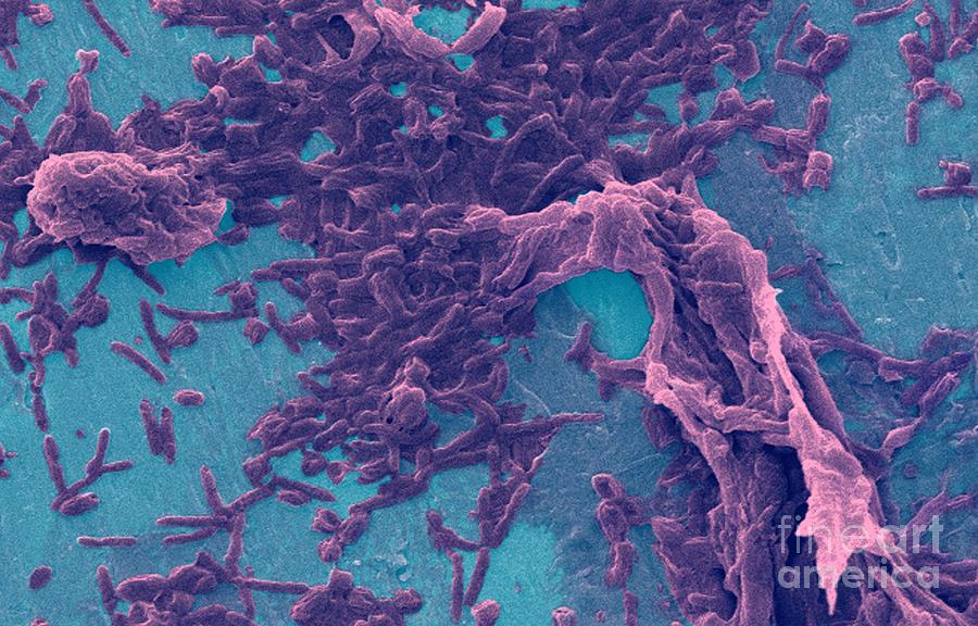 Legionella Pneumophila Sem Photograph