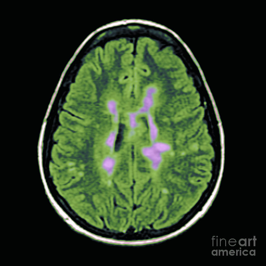 Mri Of Multiple Sclerosis Photograph  - Mri Of Multiple Sclerosis Fine Art Print