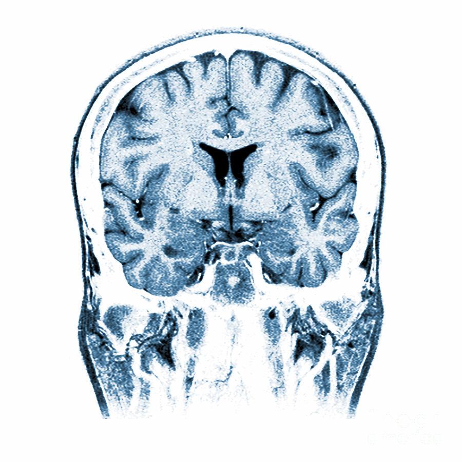 Normal Coronal Mri Of The Brain Photograph