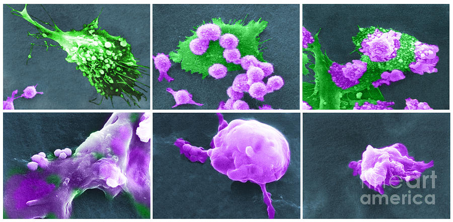 Cancer Cell Death Sequence, Sem Photograph