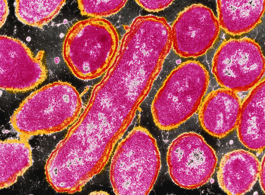 haemophilus influenza If you're reading this, it's probably because you heard about hib and wonder what it is the good news is, if you live in the united states, you were probably vaccinated against hib.