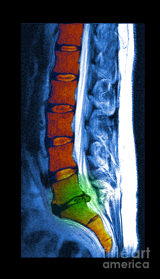 Herniated Disc Photograph