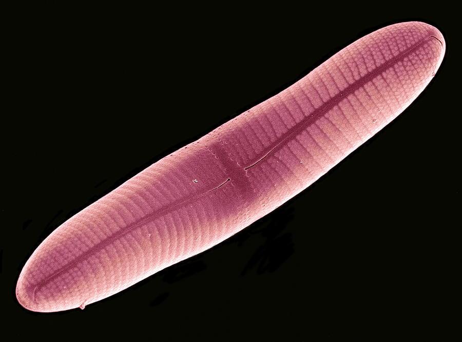 Navicula Sp. Photograph - Diatom, Sem by Steve Gschmeissner