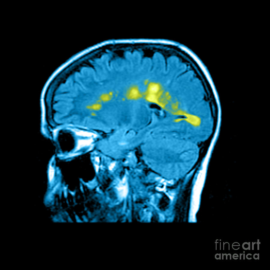 Mri Of Multiple Sclerosis Photograph