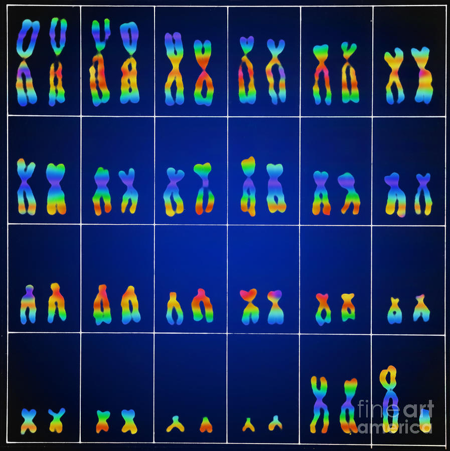 Male Karyotype Photograph  - Male Karyotype Fine Art Print