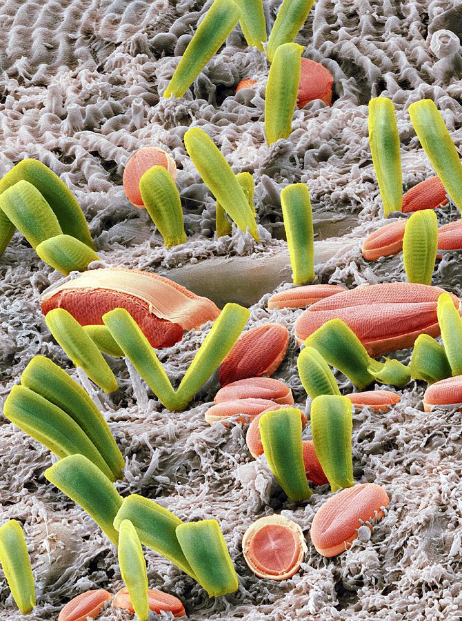 Diatoms, Sem Photograph