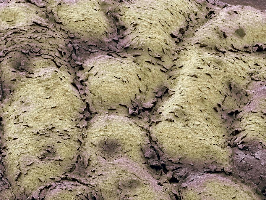 Skin Surface, Sem Photograph