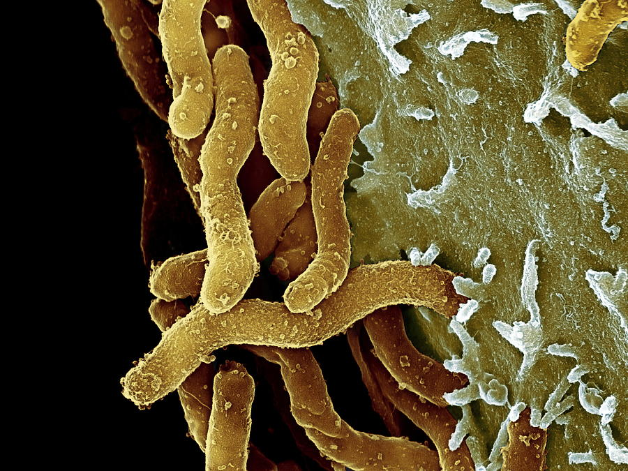 Helicobacter pylori bacteria sem photograph by - Bacterie helicobacter pylori ...
