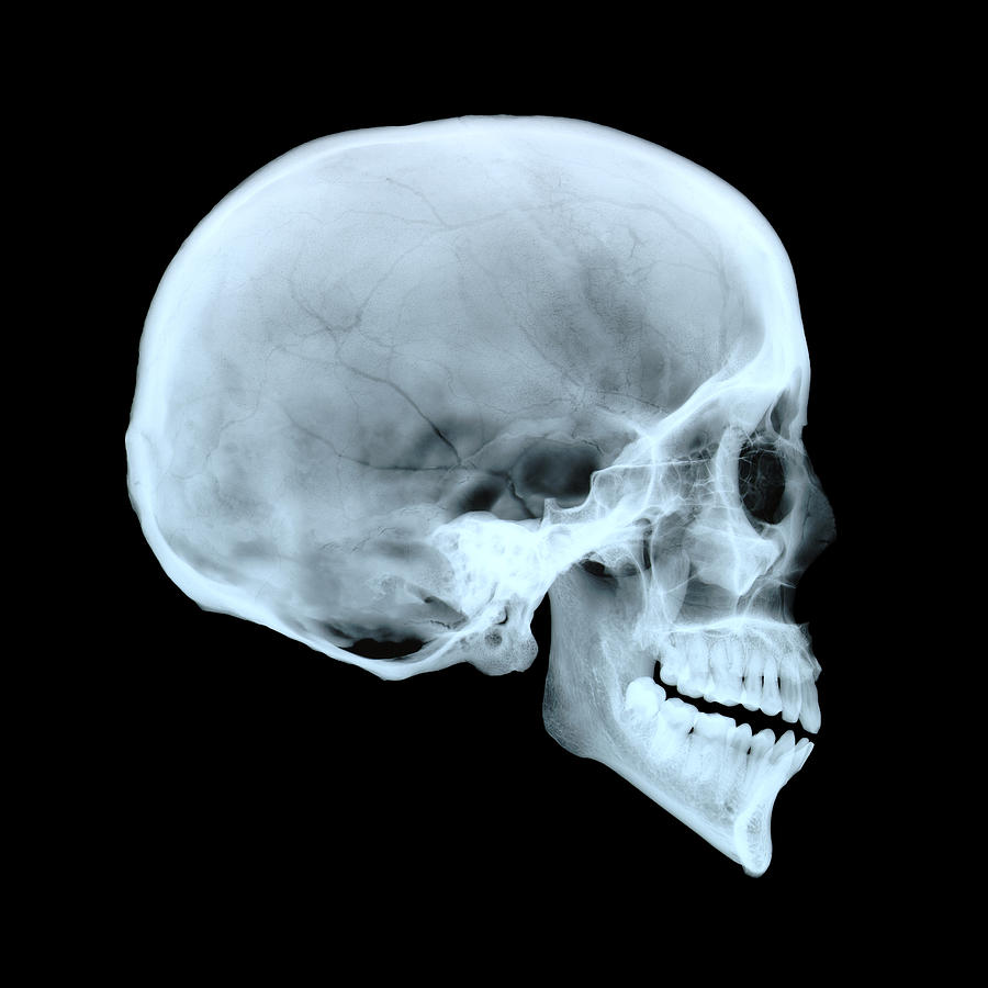 X Ray Skull Views X Ray Skull Views | ww...