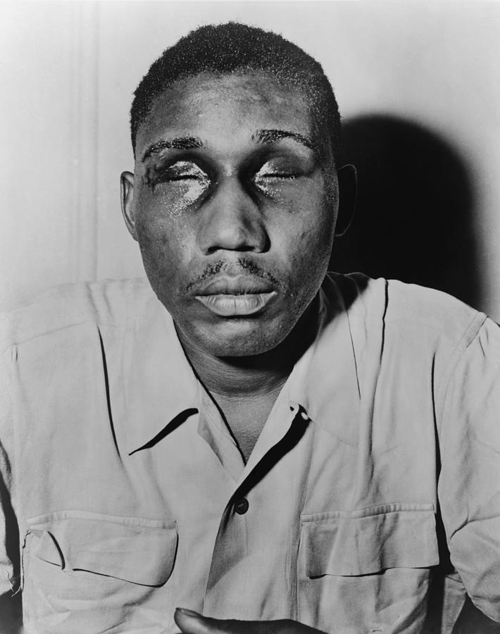 African American Man With Eyes Swollen Photograph