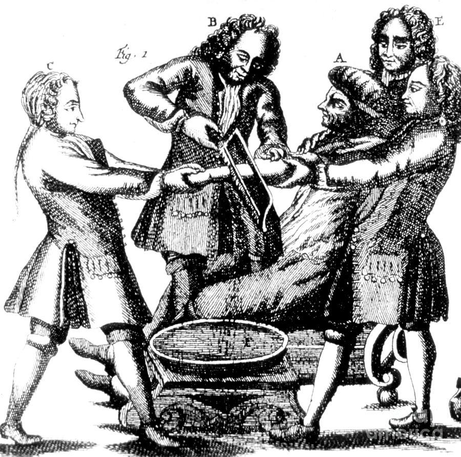 Amputation 1719 Photograph