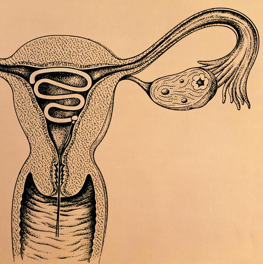 Artwork Of An Intrauterine Device In The Uterus Photograph