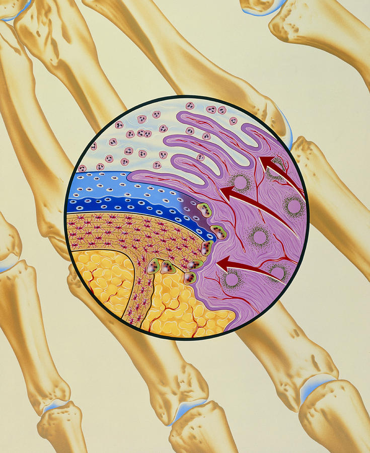 Artwork Of The Mechanism Of Rheumatoid Arthritis Photograph
