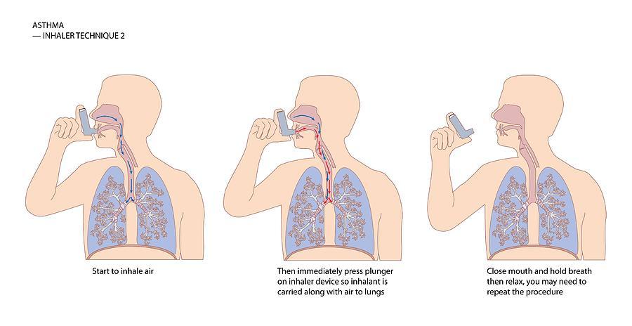 asthma steroid inhaler dose