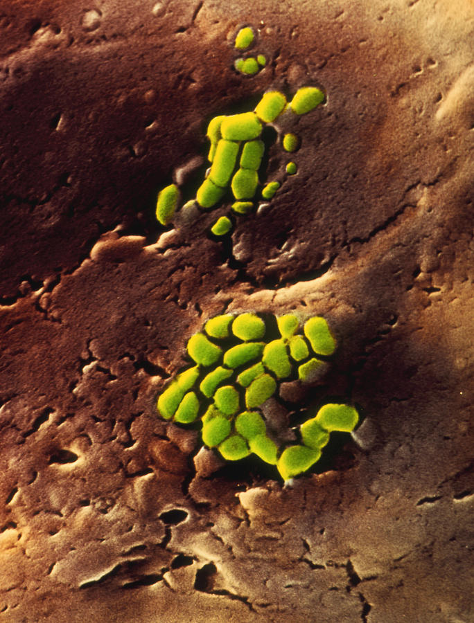 Contanination Photograph - Bacteria On Cooked Roast Beef by Dr Jeremy Burgess