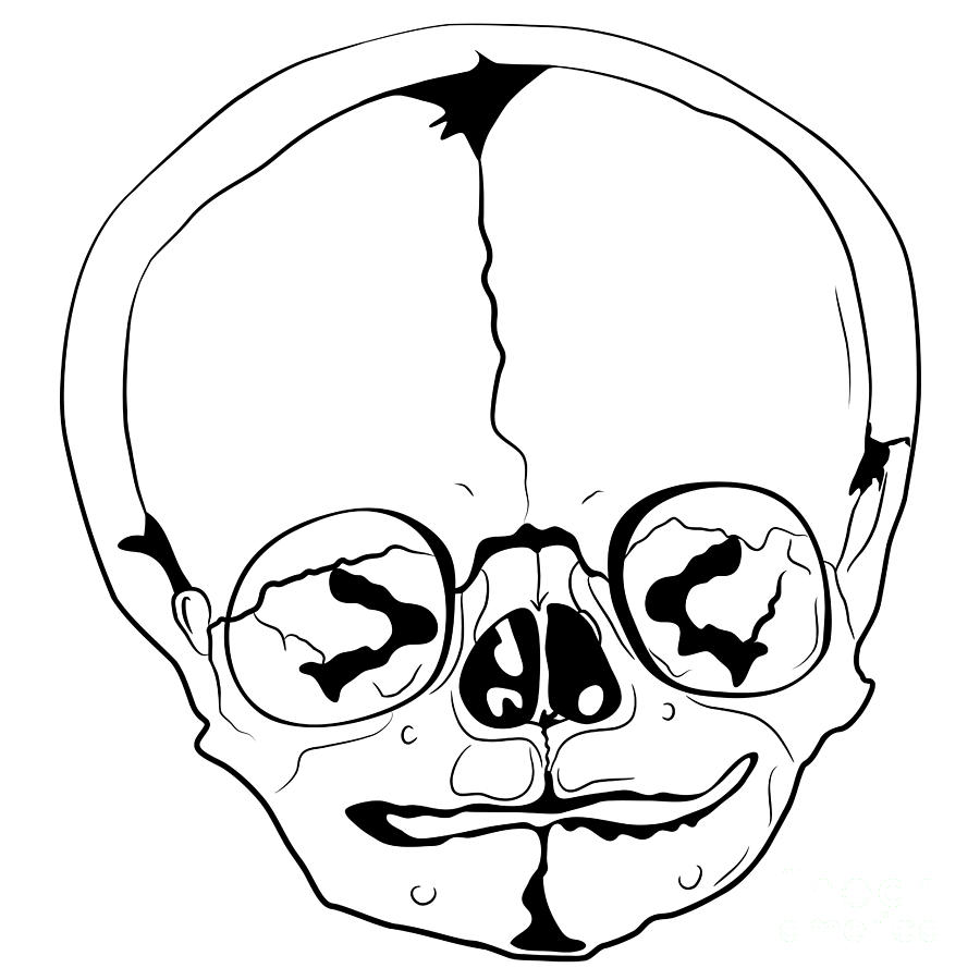 Bizarre Skull Drawing