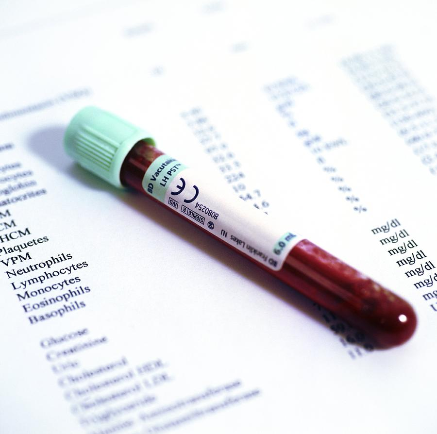 Blood Sample With Results Photograph