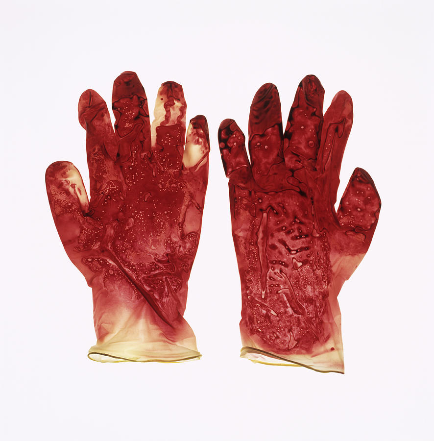 Case Design glove phone case : Blood-stained Surgical Gloves is a photograph by Kevin Curtis which ...
