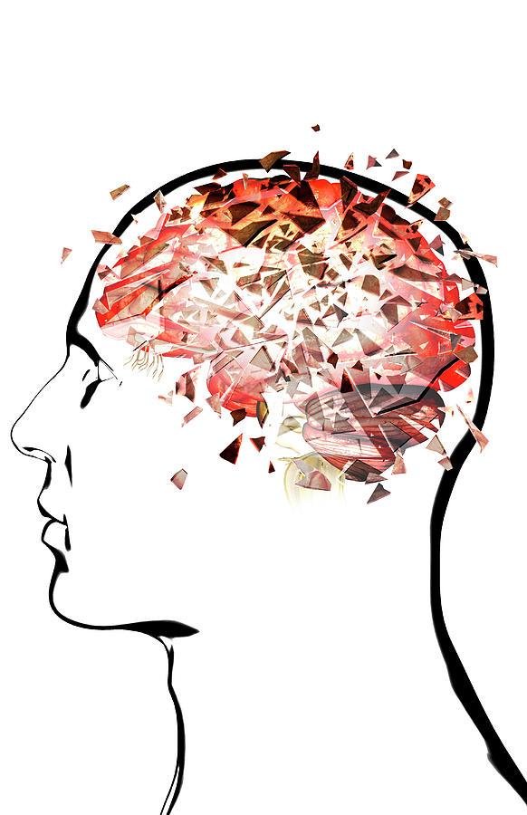 Brain Shattering Digital Art