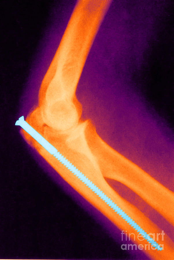 Science Photograph - Broken Arm With Metal Pin, X-ray by Science Source