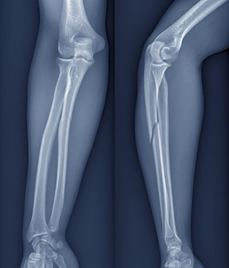 Blue Background Photograph - Broken Arm, X-ray by Zephyr