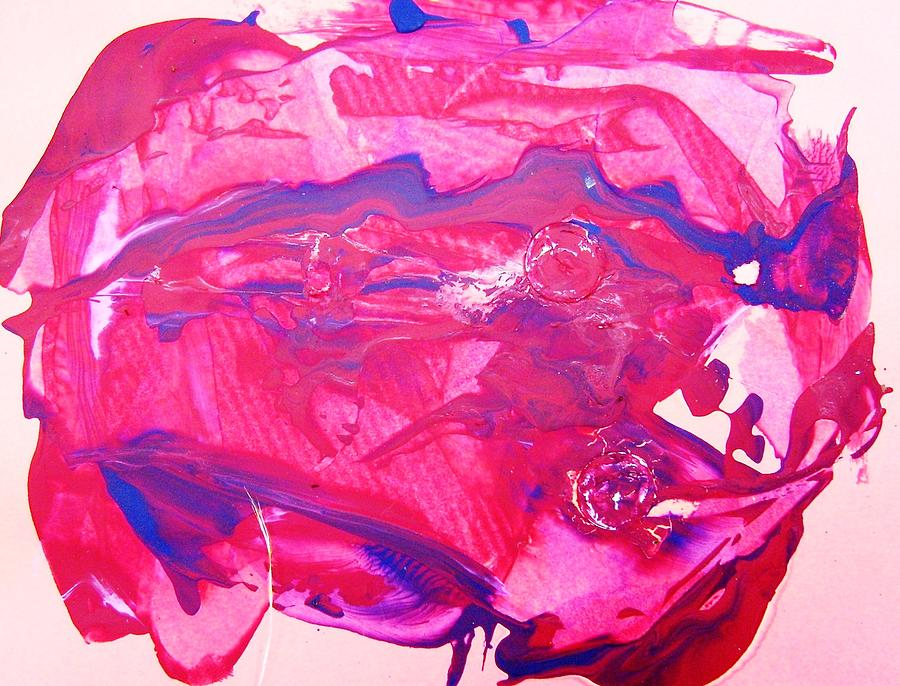 Broken Heart Transplant Painting