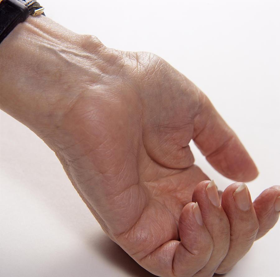 Bursa On Wrist Photograph
