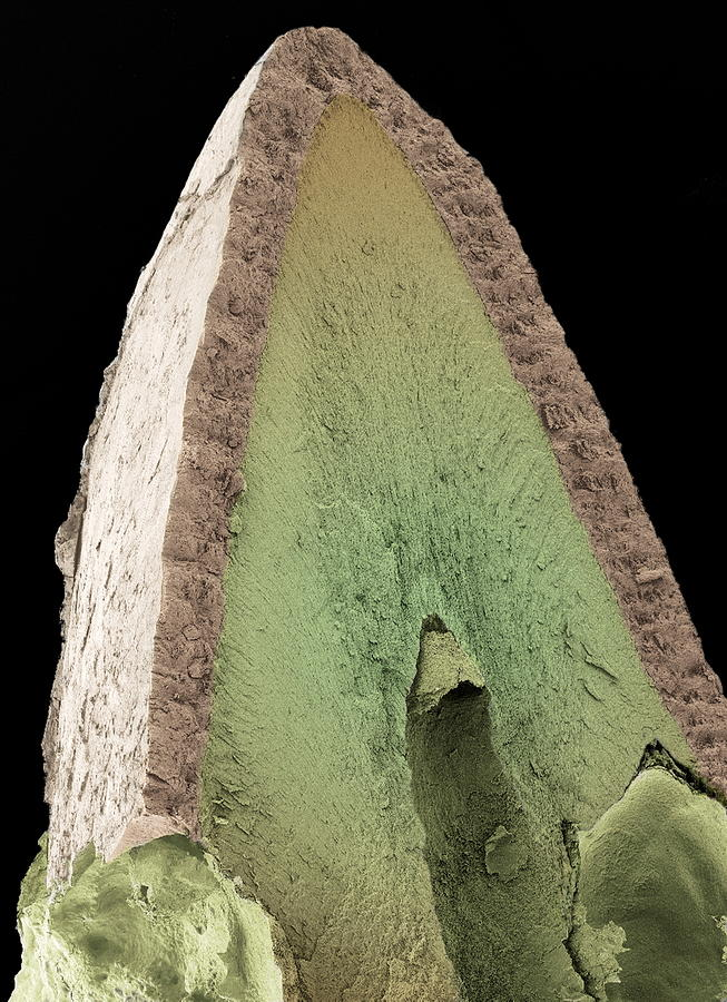 Felis Catus Photograph - Cats Tooth, Sem by Steve Gschmeissner