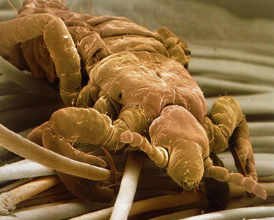 Coloured Sem Of A Human Head Louse On Hair Shafts Photograph  - Coloured Sem Of A Human Head Louse On Hair Shafts Fine Art Print