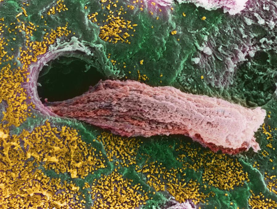 Coloured Sem Of A Secreting Uterine Gland Photograph