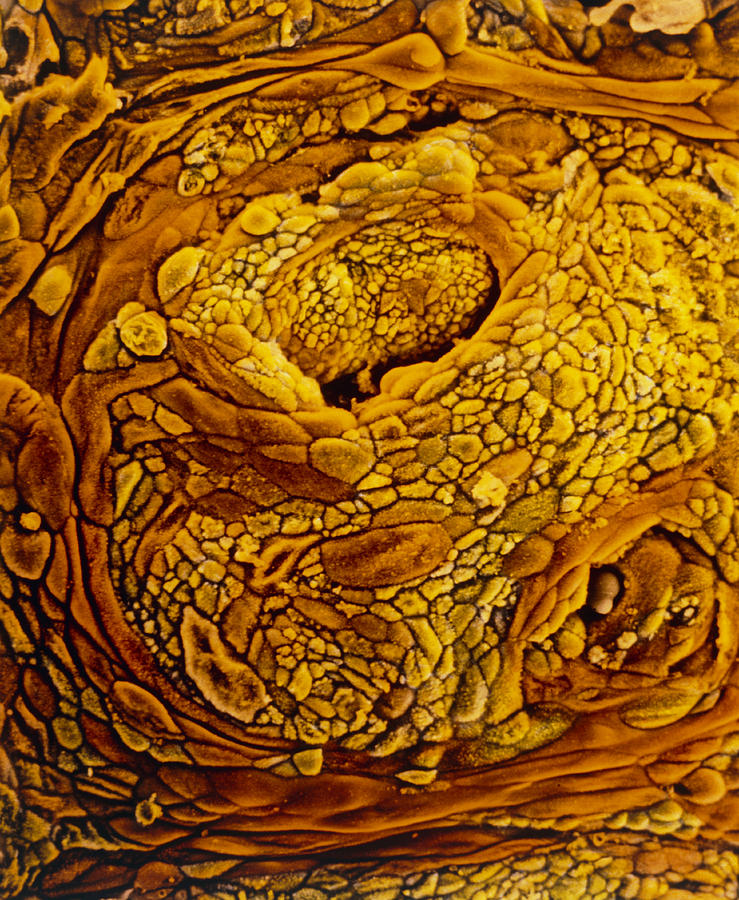 Endometrial Adenocarcinoma Photograph - Coloured Sem Of Adenocarcinoma Of The Human Uterus by Professors P.m. Motta & S. Makabe